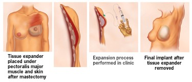 植入物(組織擴張器及義乳)乳房重建,圖解說明
